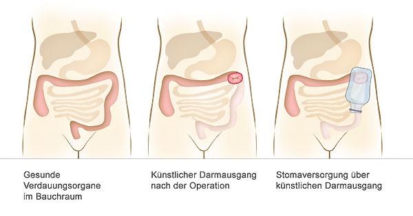 rectum carcinom und hautkrebs
